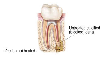 Root Canal Therapy - Dentist Nampa, ID