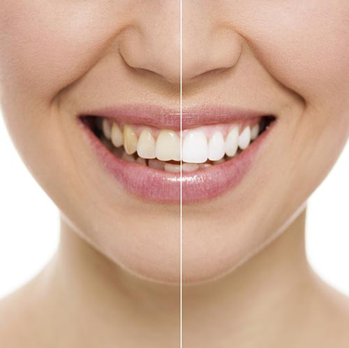 Teeth Whitening - Cosmetic Dentistry Nampa, ID